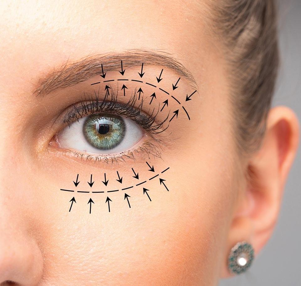 Eyelids Lift Blepharoplasty