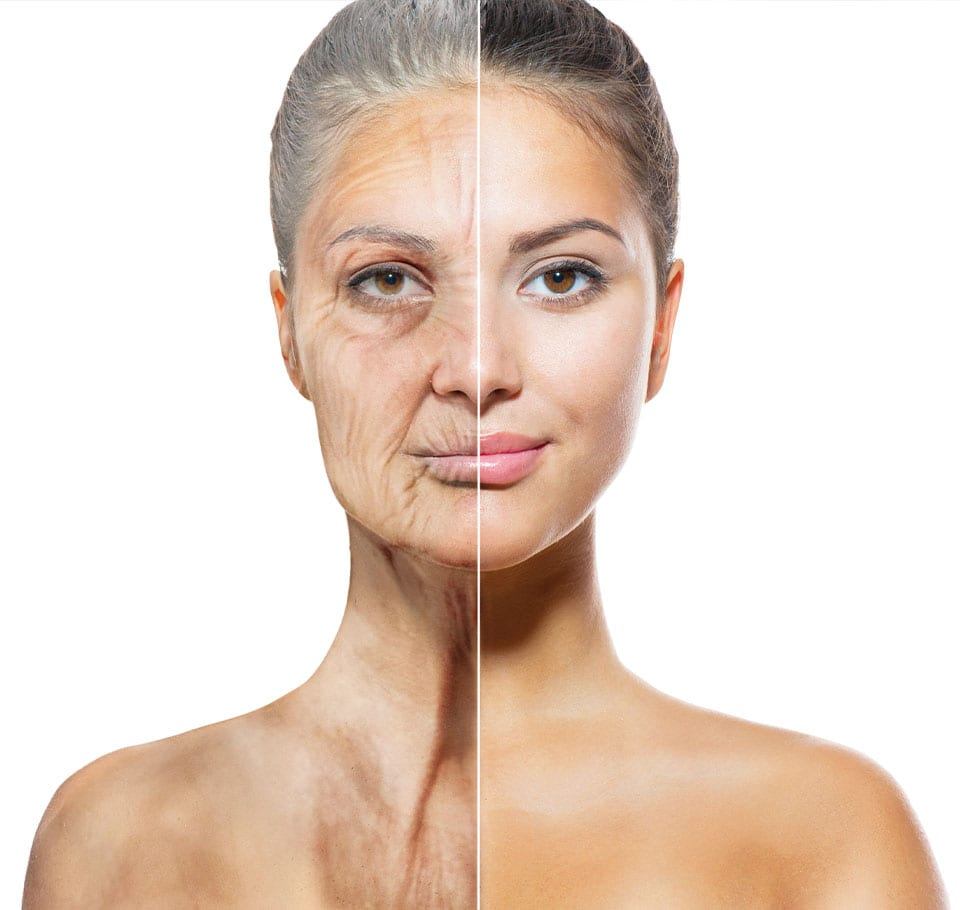 Body Ageing